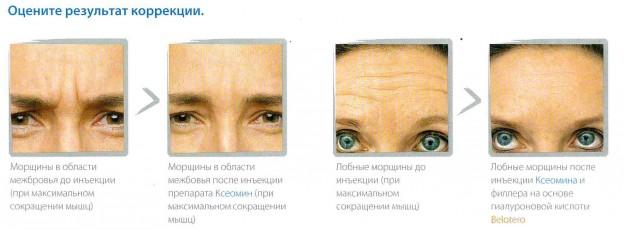 Фото - Взгляни на мир открытыми глазами с MERZ AESTHETICS!