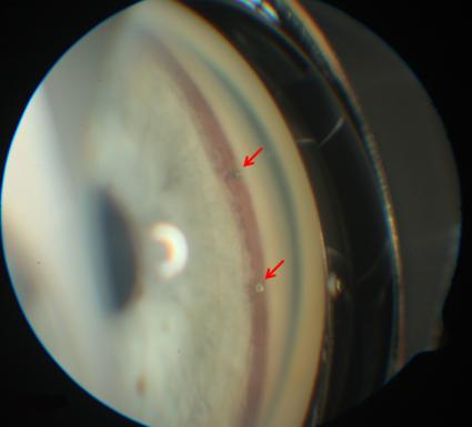 Фото - Инновационный метод для борьбы с глаукомой В ГЕЛИОС клинике Шверина