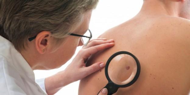 Фото - Случаев оперативного лечения рака кожи в Германии  с каждым годом становится всё больше